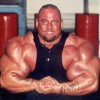 Unbelievable-The Man Who's Arms Exploded