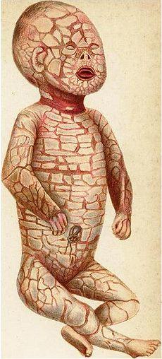 Harlequin Skin Disease